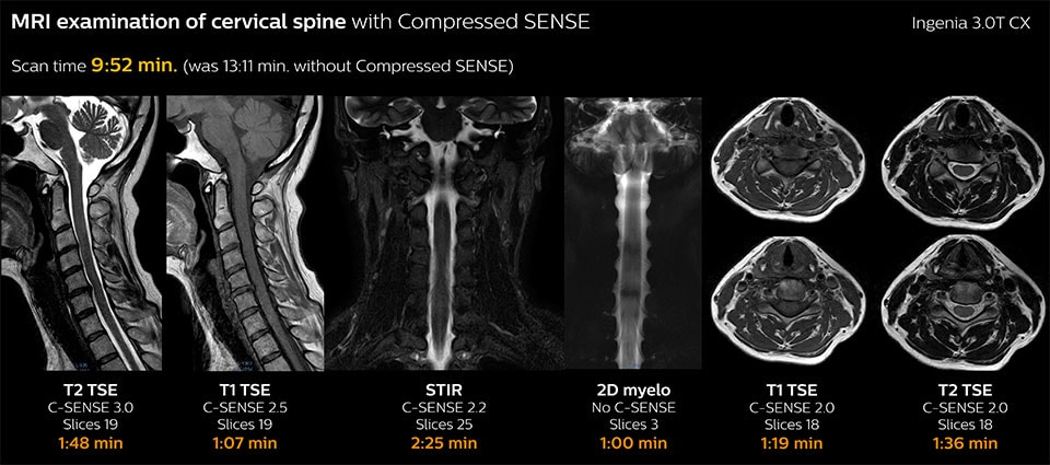MRI examination of cervical spine with Compressed SENSE